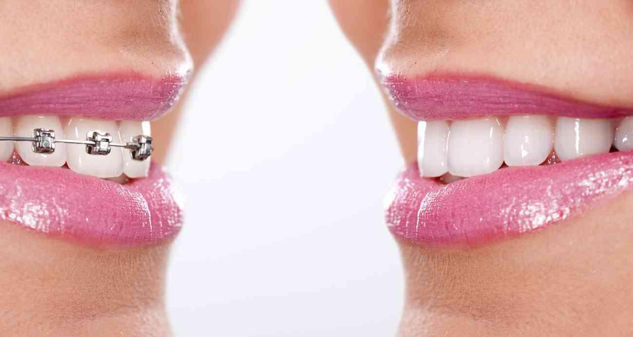 Diferentes tratamientos para lograr la mejor sonrisa 3